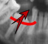 ortodontia a distancia 11