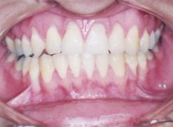ortodontia a distancia 8